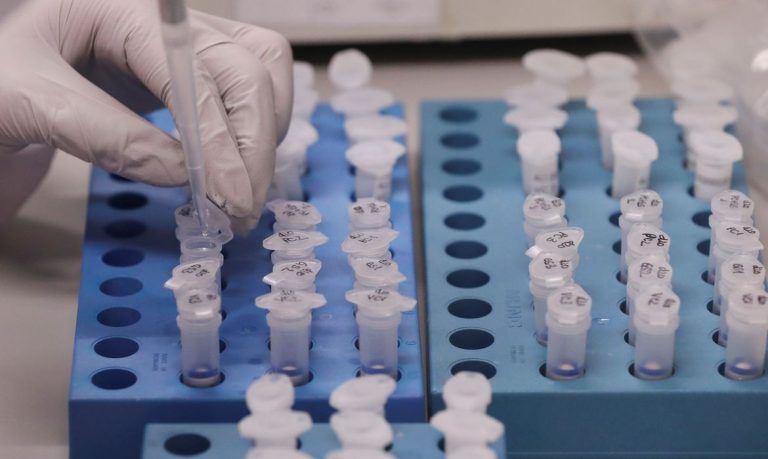 Boletim atualizado pela Prefeitura aponta 33 casos confirmados, 150 descartados e 5 recuperados de Coronavírus em Jacareí