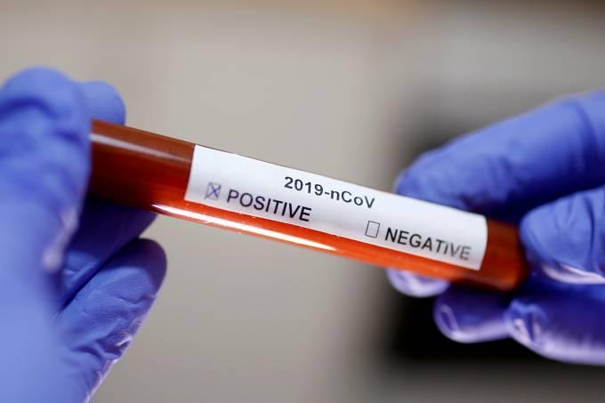 Jacareí tem 8 casos confirmados e 64 descartados de Coronavírus
