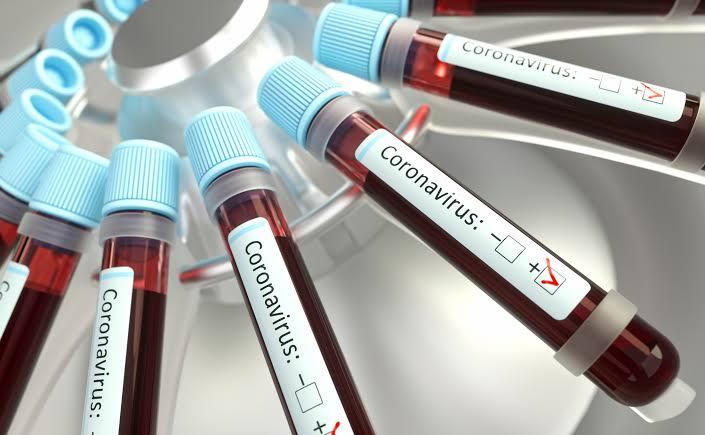 Boletim da Prefeitura de Jacareí informa 16 óbitos e 247 casos de coronavírus
