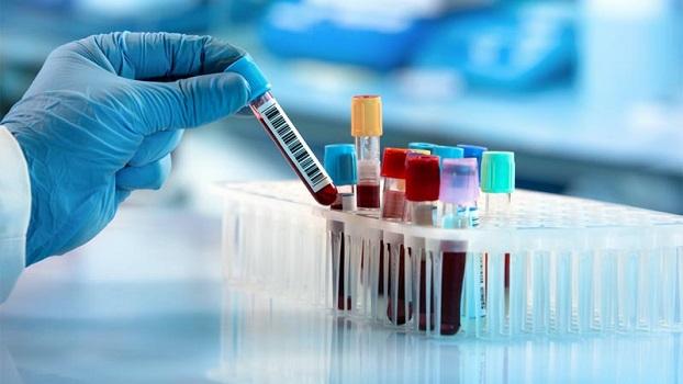 Boletim da Prefeitura de Jacareí aponta 190 casos confirmados, 99 recuperados e 12 óbitos de coronavírus